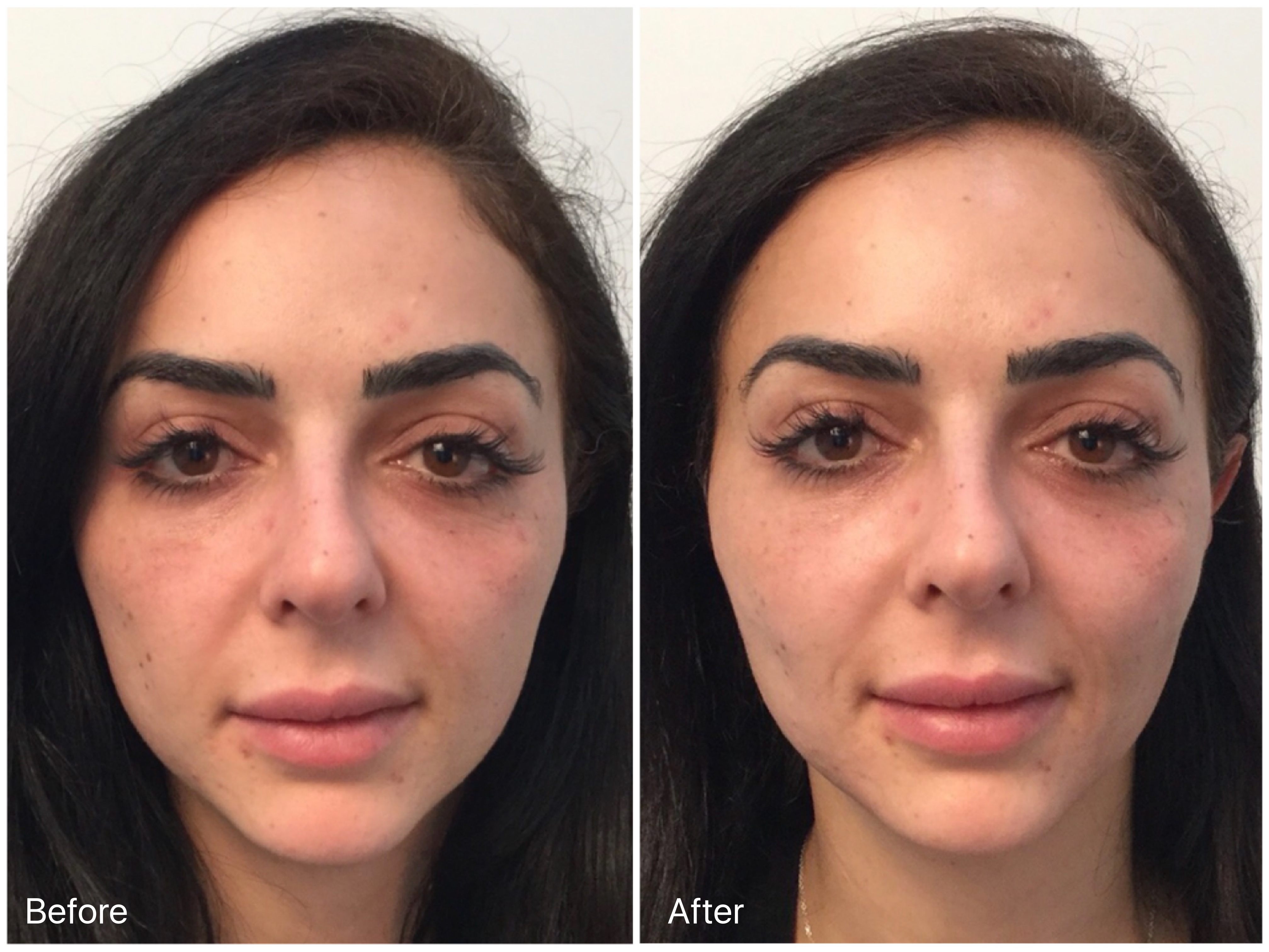 non surgical facelift clinic sydney