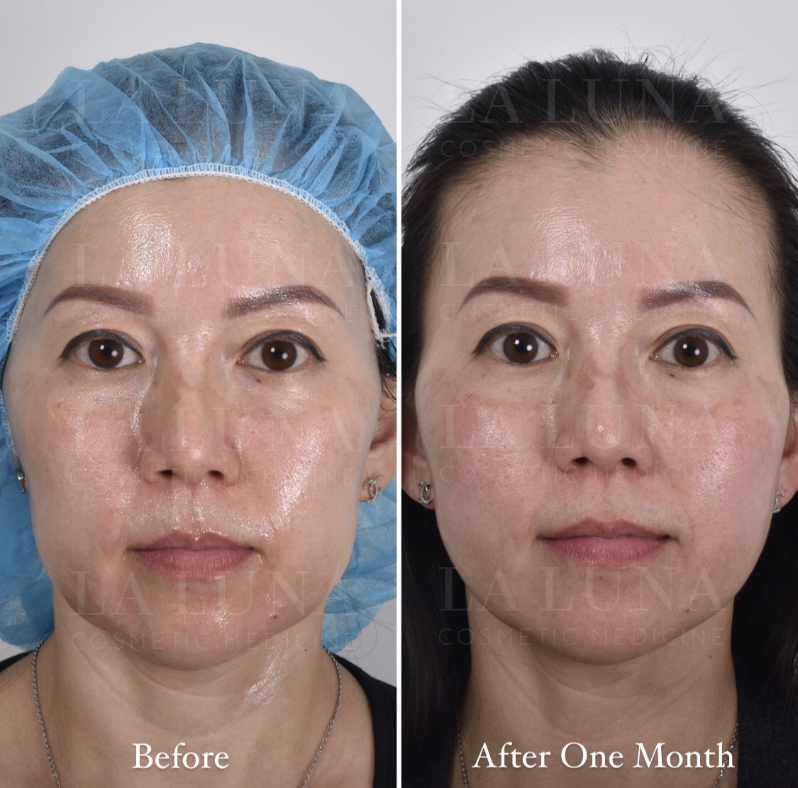 Nonsurgical facelift clinic