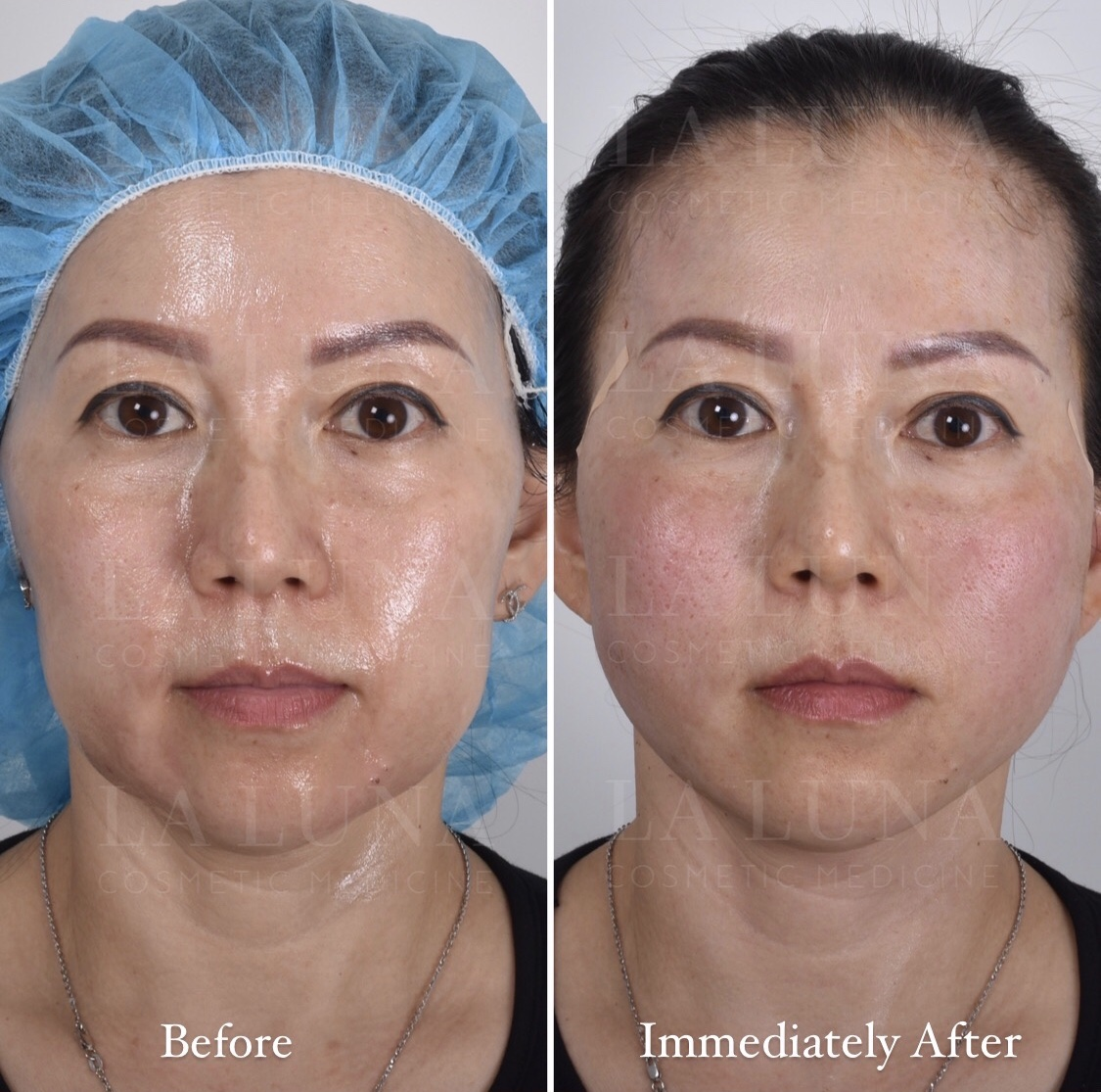 before and after threadlift sydney