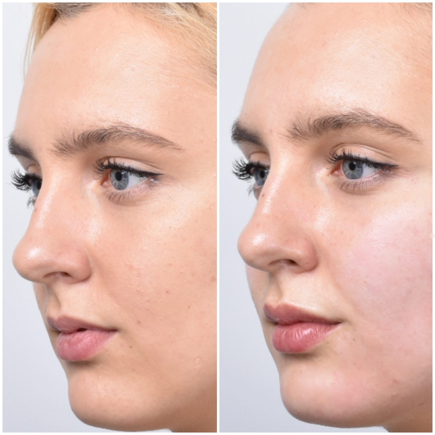 Before After Lip Filler injections