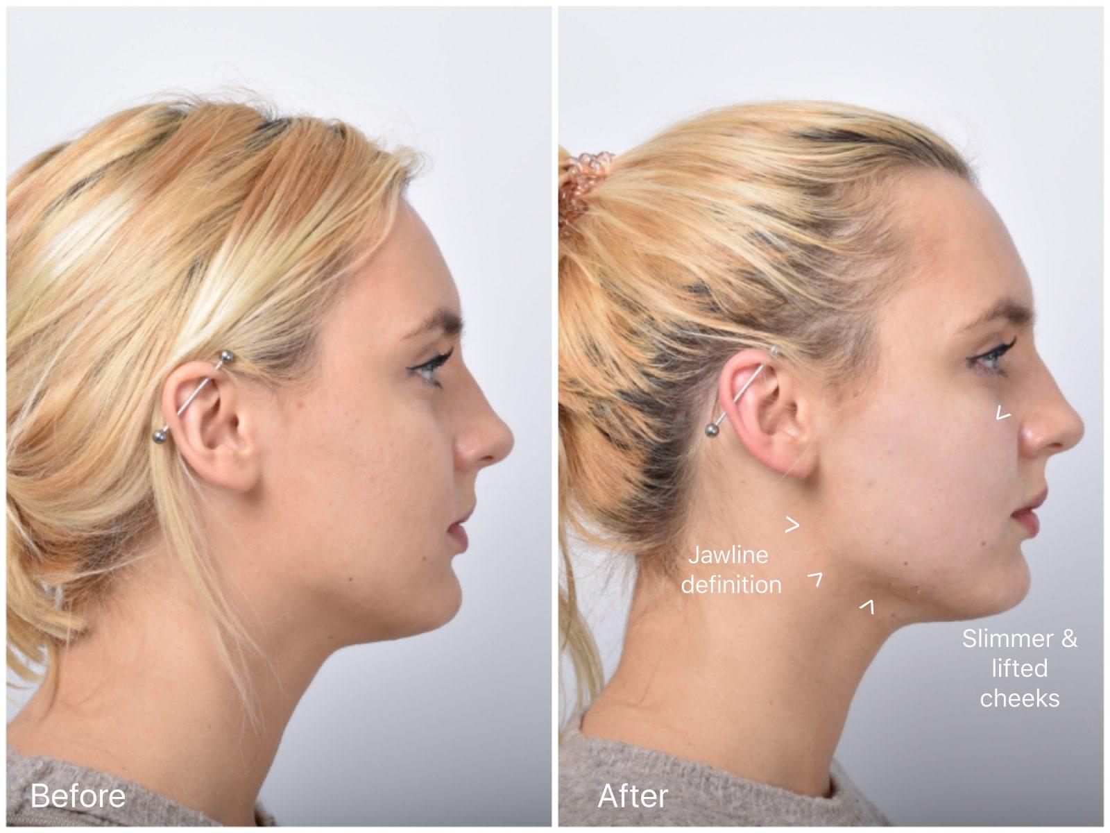 non surgical facelift sydney