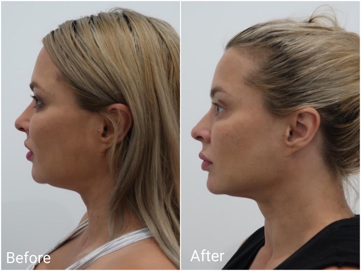 Non Surgical Facelift Clinic Sydney - Non Invasive Facelift Threading