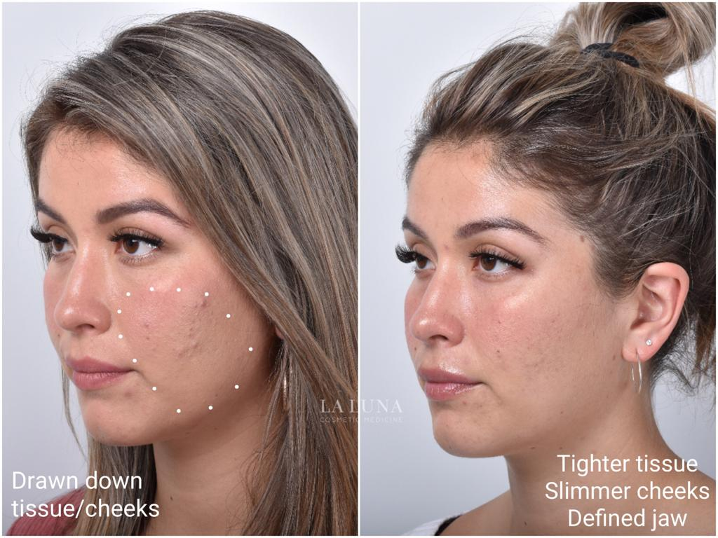 Non Surgical Facelift Clinic Sydney - Non Invasive Facelift