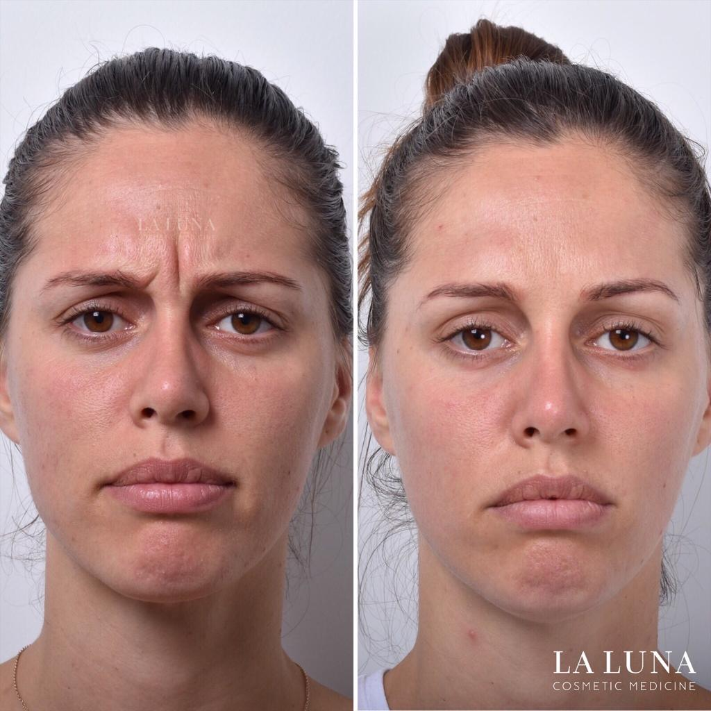 before and after frown line removal