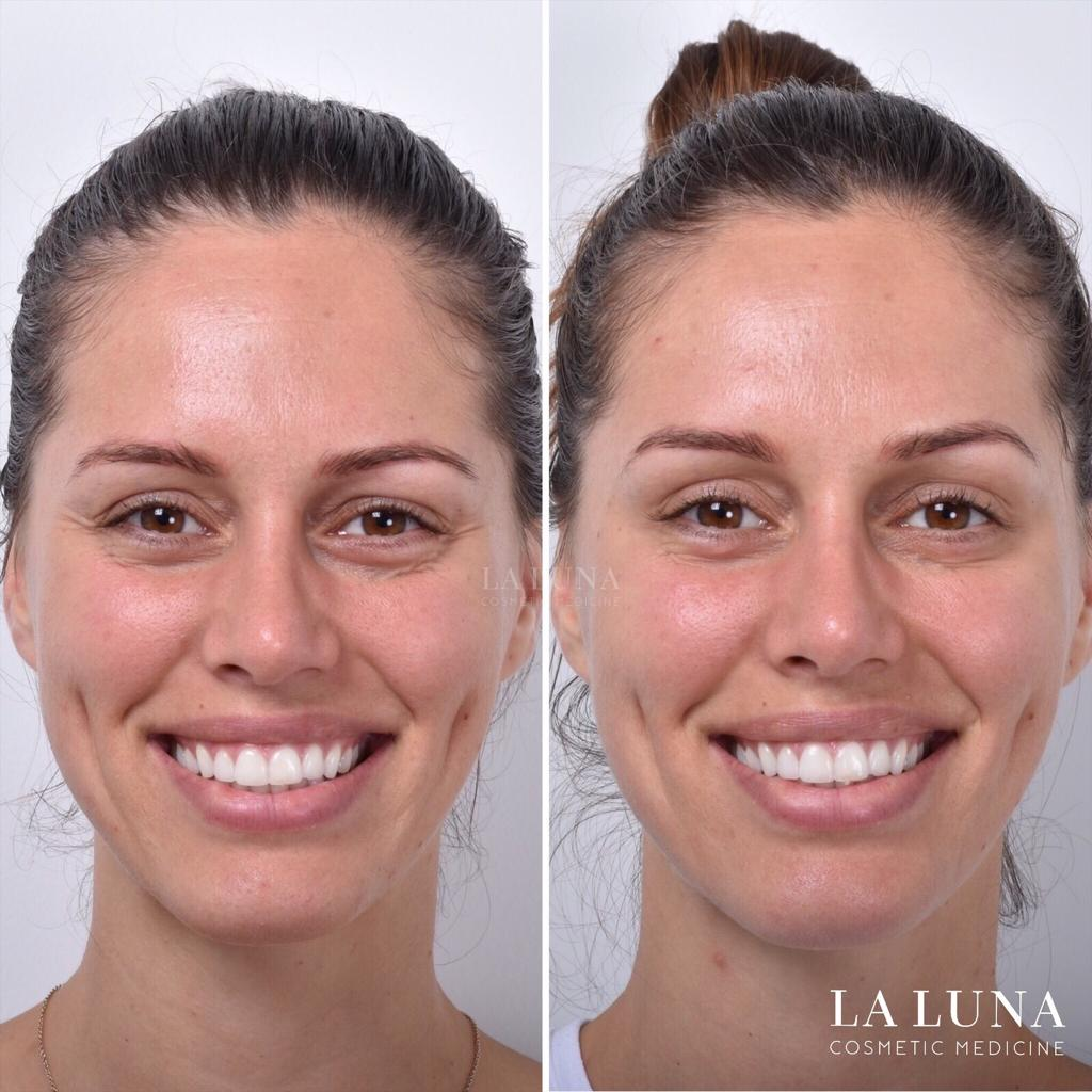 before and after antiwrinkle injections