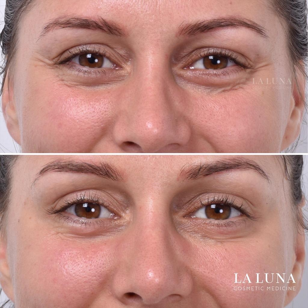 Before and after antiwrinkle