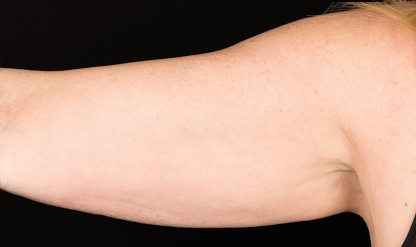 coolsculpting arms sydney
