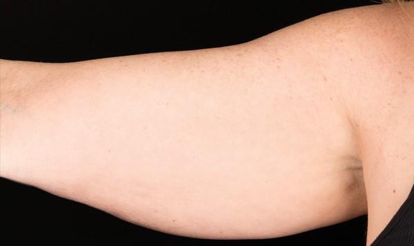 coolsculpting arm fat sydney