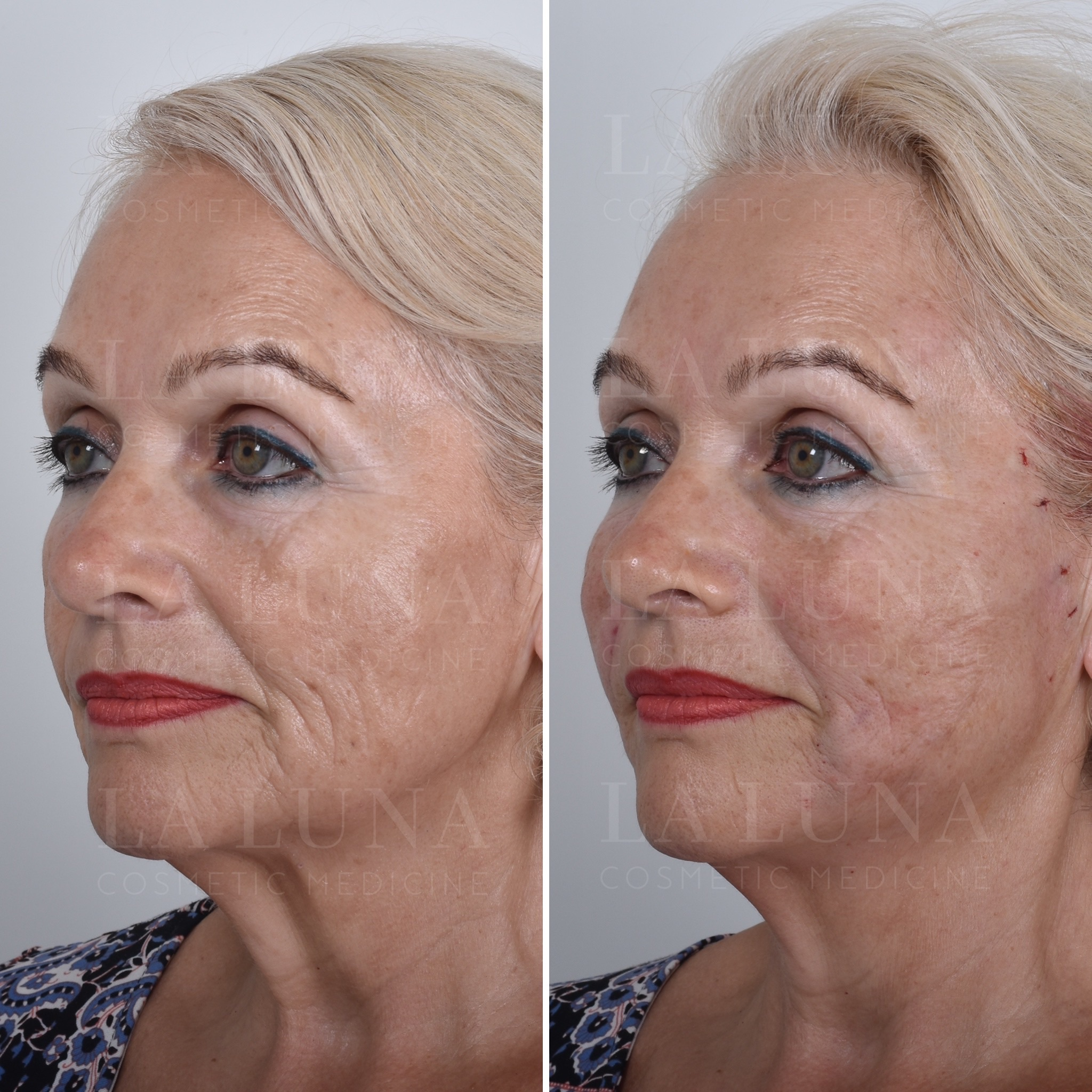 thread lift for over 50