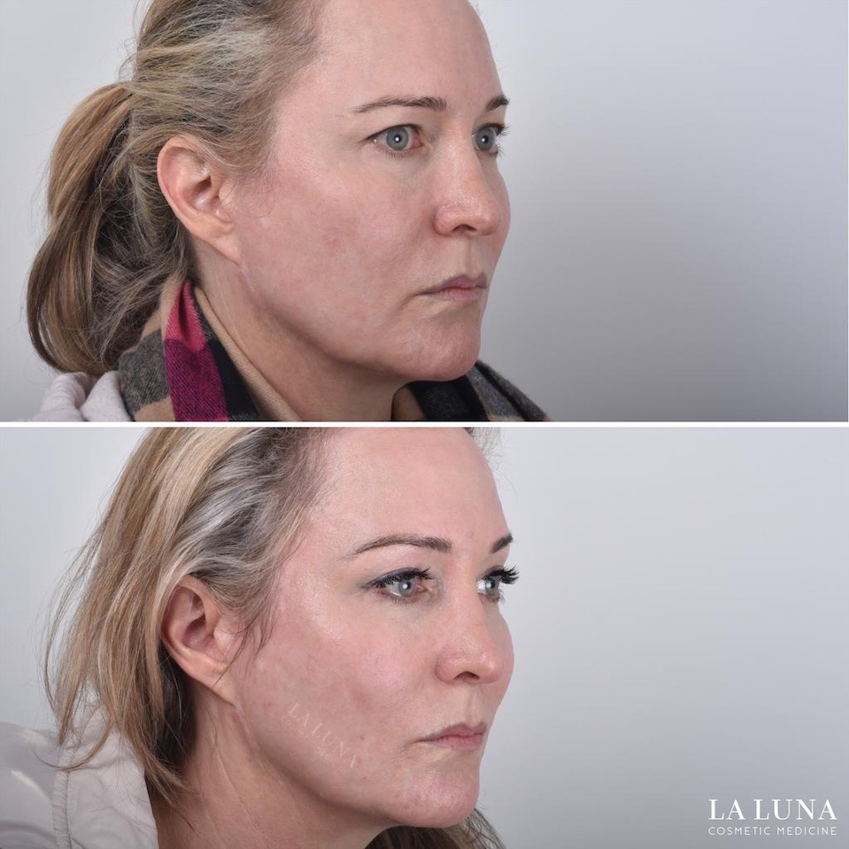 Nonsurgical thread facelift Sydney