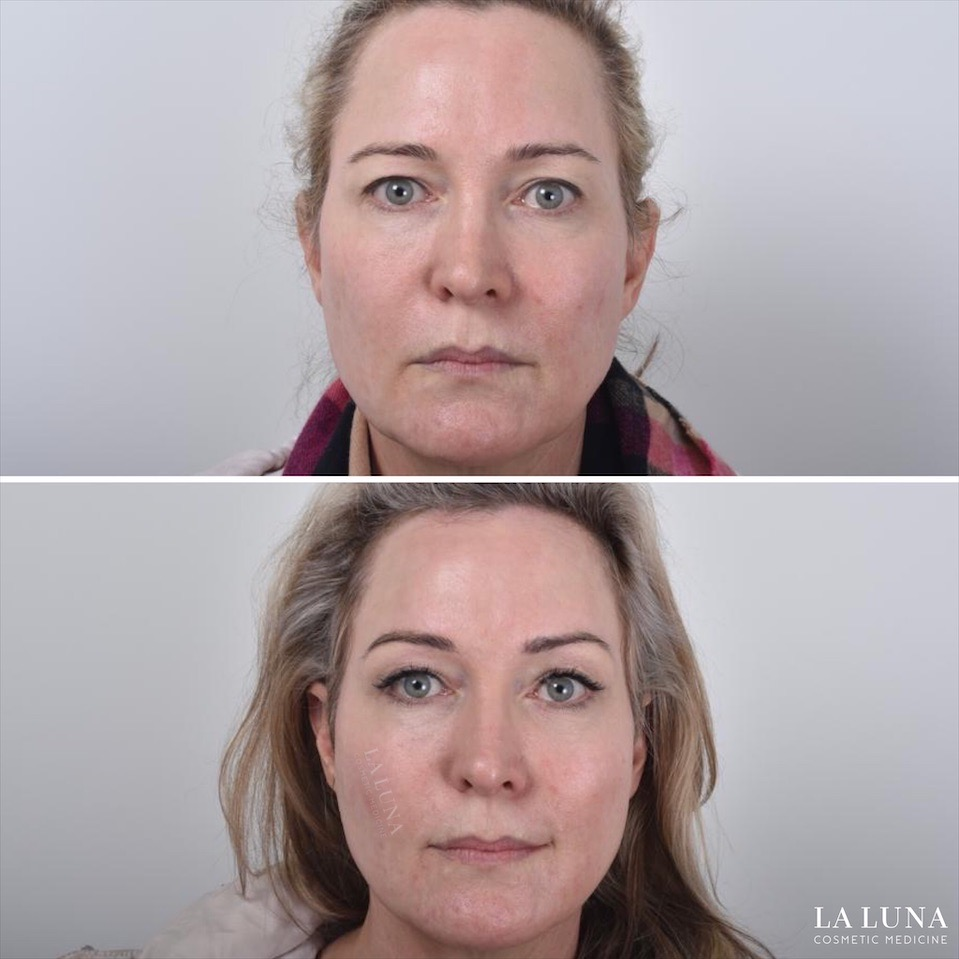 Before and after thread facelift sydney