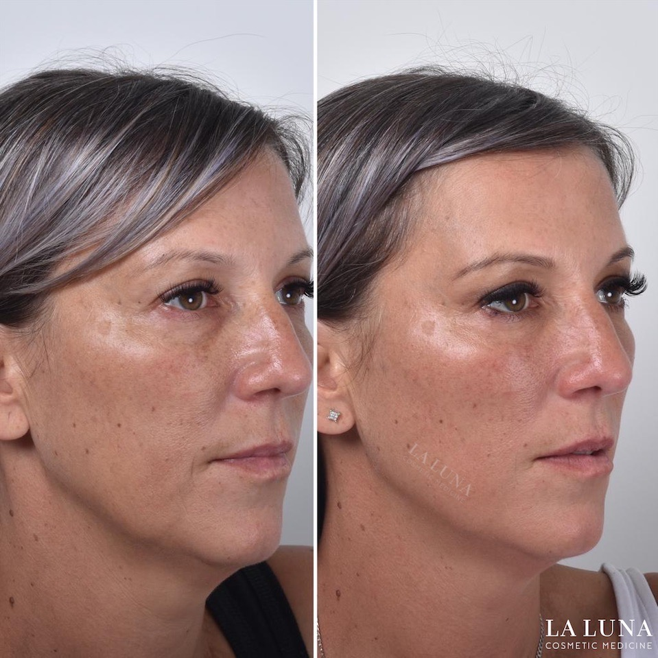Face threadlift for cheeks