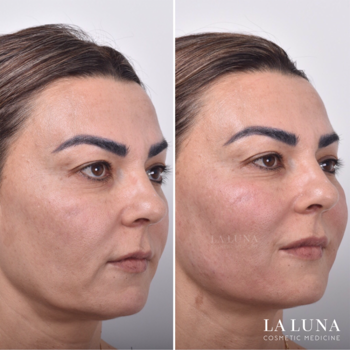 before and after non surgical facelift