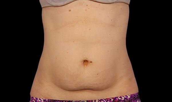 coolsculpting abdomen sydney