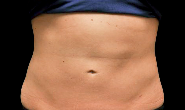 fat freezing belly