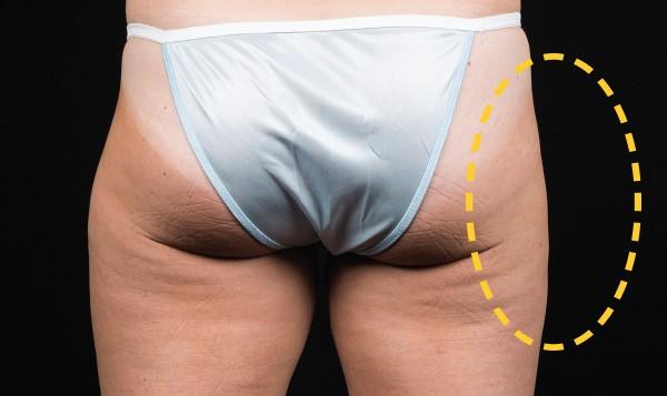 coolsculpting thighs sydney