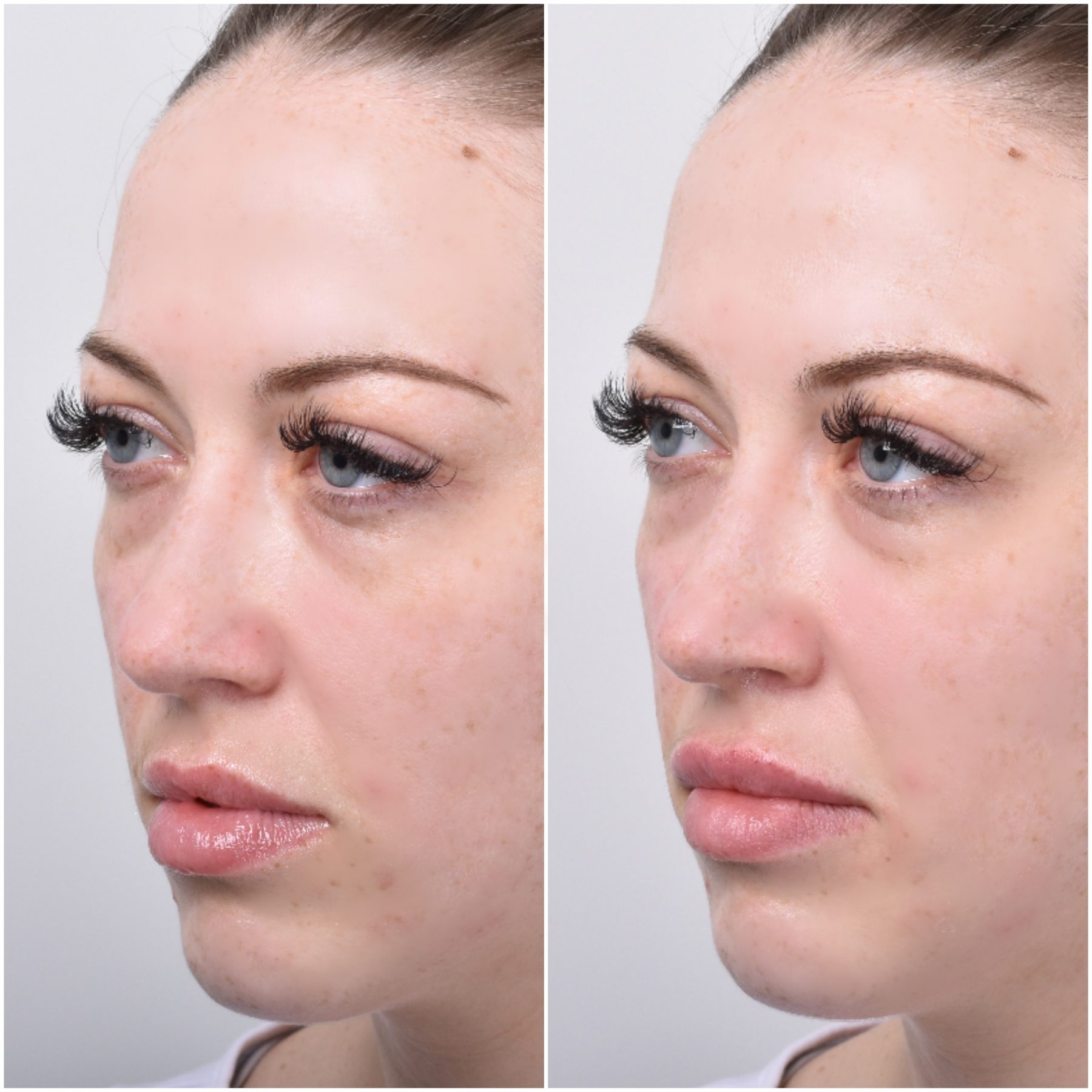 natural looking lip treatment sydney