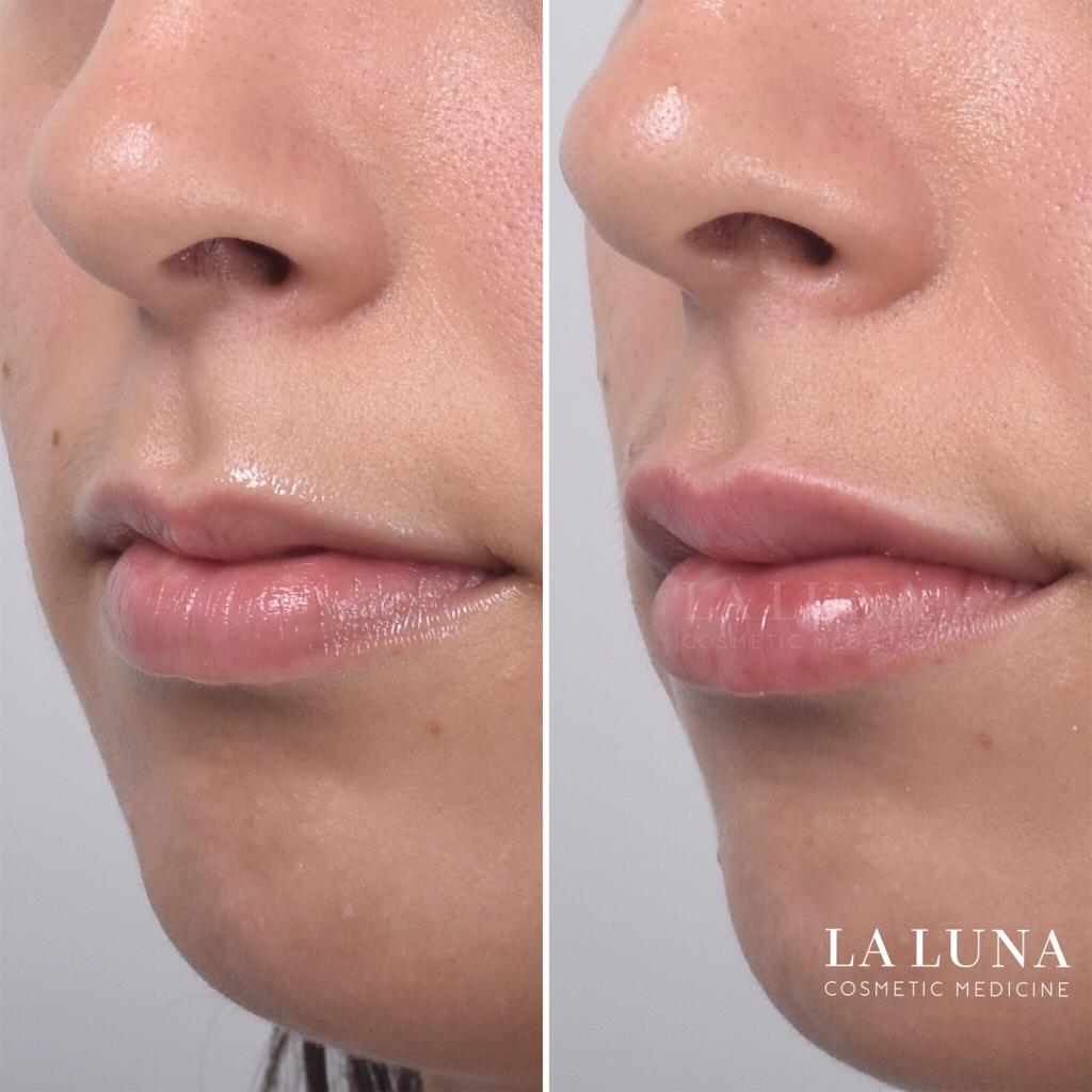 Before and after lip filler injections
