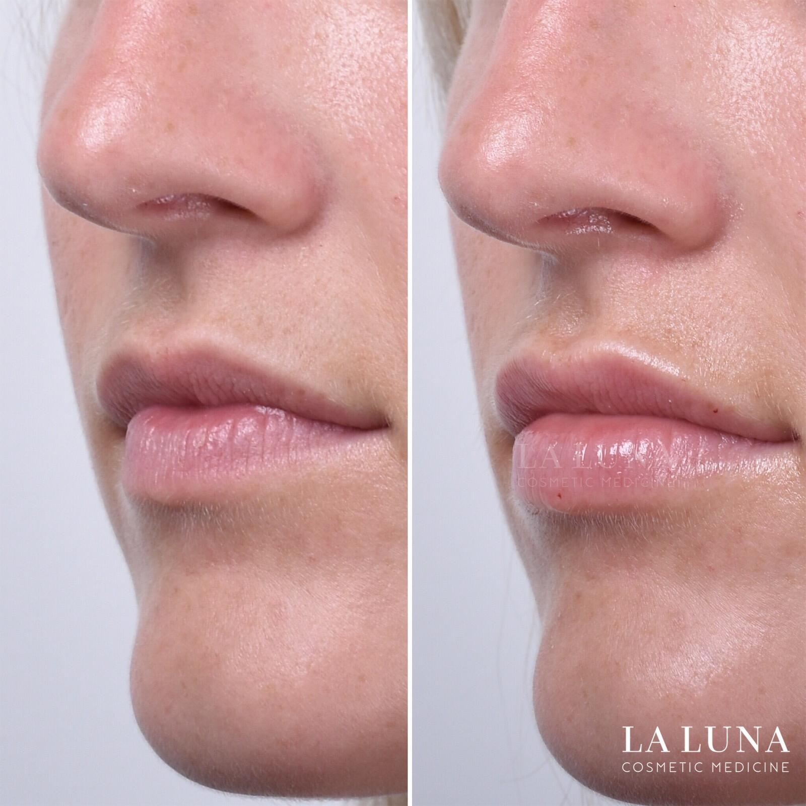 lip injections sydney